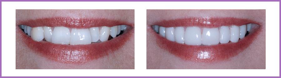 Les facettes dentaires Marseille 5ème (13005)   Dentiste Centre ... 801a113ec94c