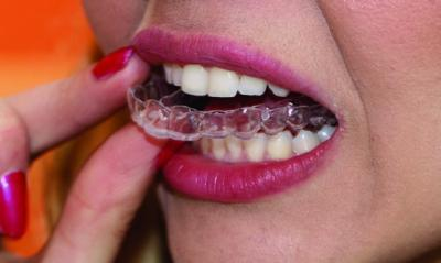 traitement orthodontique marseille 5