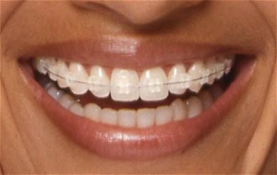 Orthodontie Marseille 5