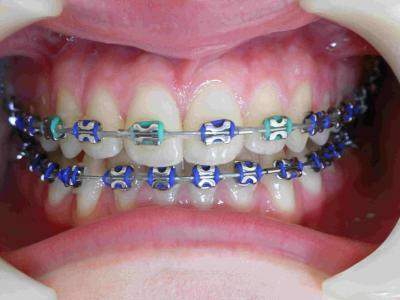 traitement orthodontique marseille 13005